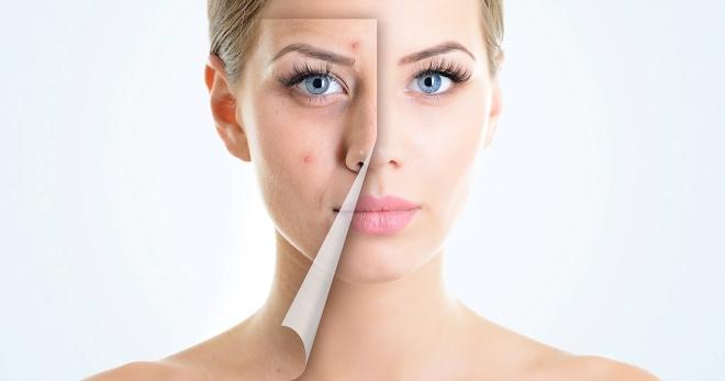 Угри на лице, лечение и мотивация фото победивших угревую сыпь